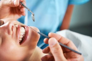 teeth-cleaning-airdrie